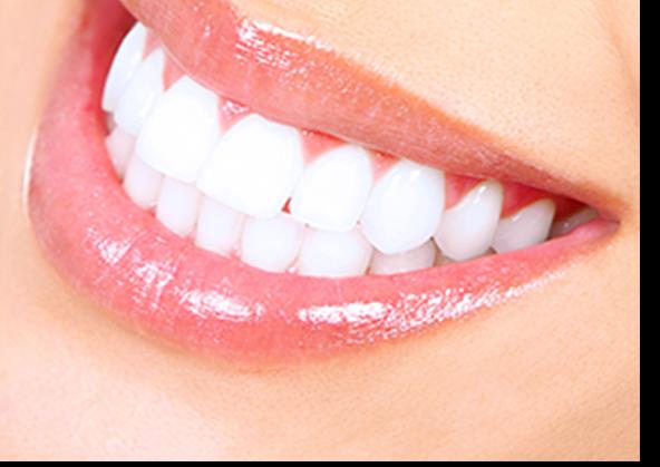 Cosmetic dentistry kathleen j lucas dds porcelain veneers solutioingenieria Choice Image